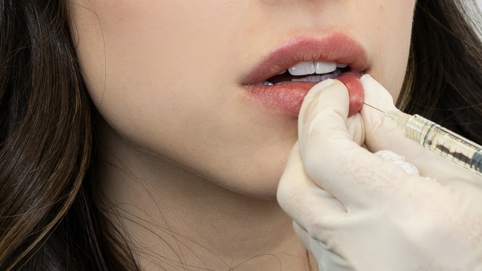 8 Aesthetics Treatments That Are Bound to Go Viral in 2020, According to Doctors