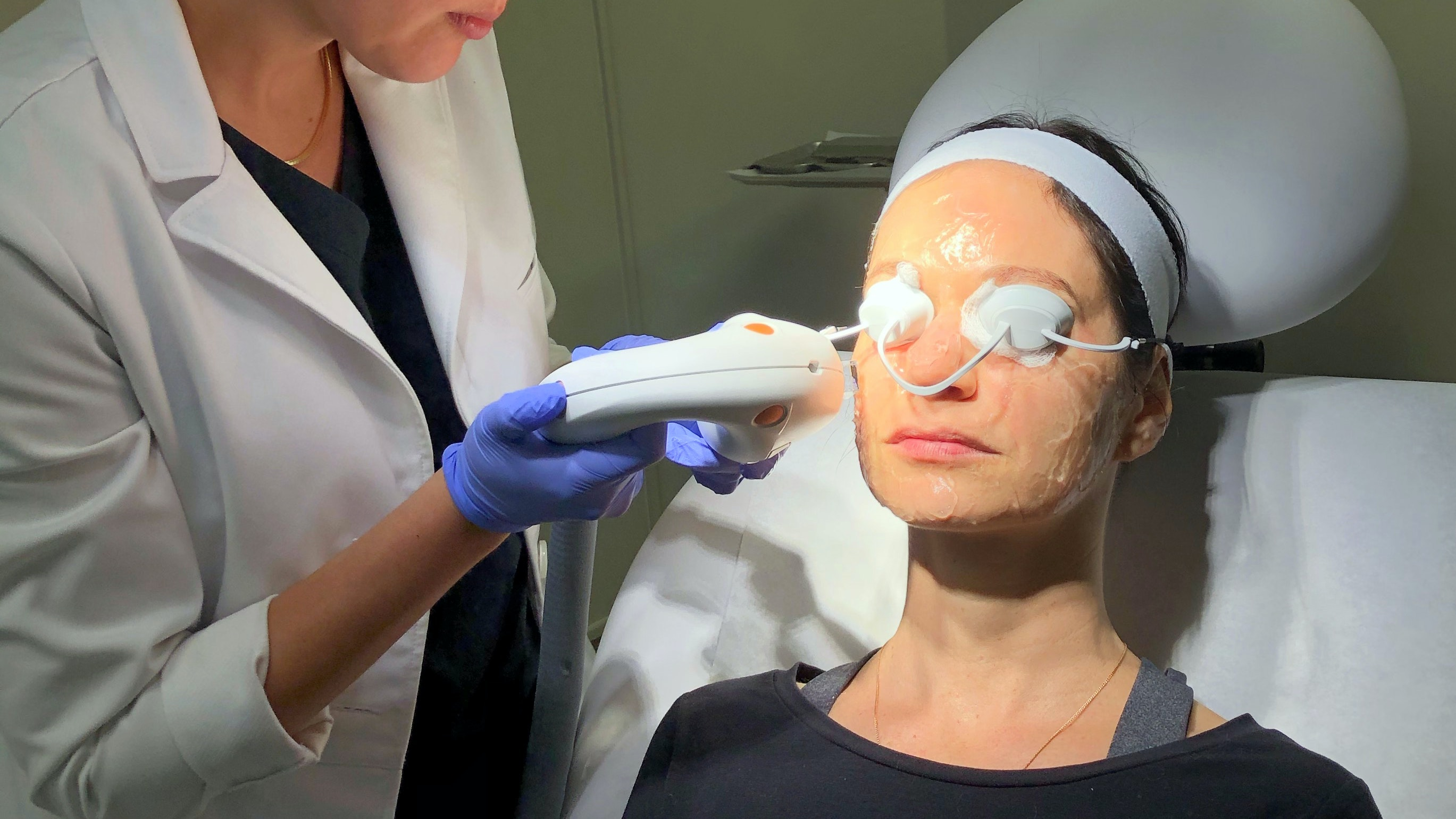 author getting laser treatment for dark spots on face