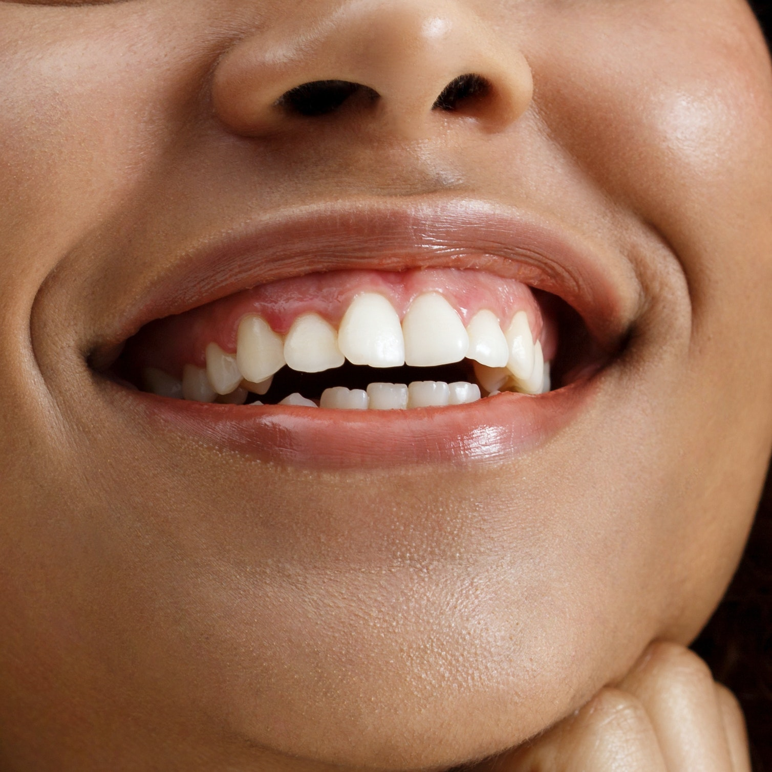 Your Teeth Are Aging You — 4 Ways to Slow Down the Process