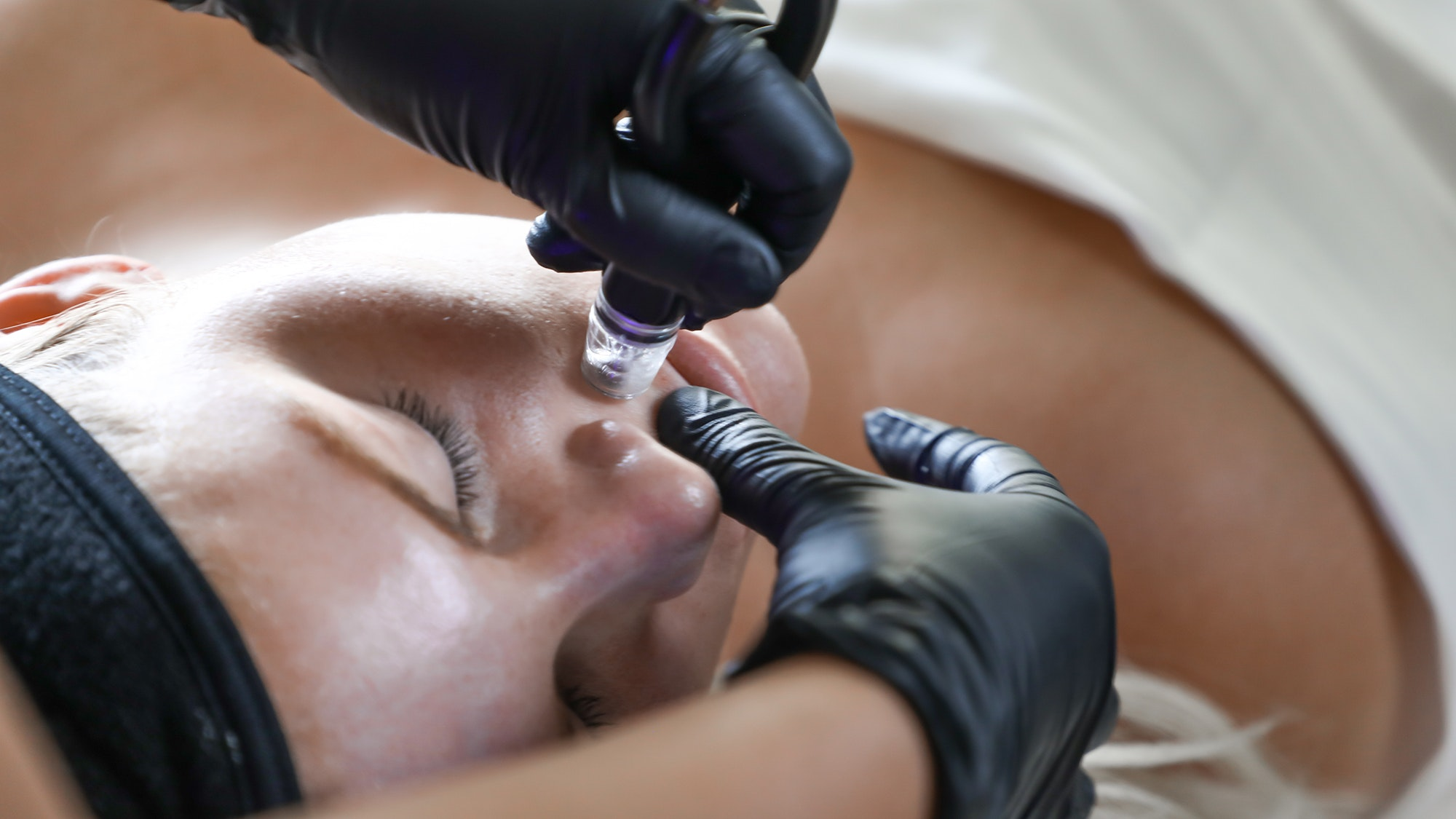 diamondglow facial treatment  above the lip for enlarged pores and improve skin texture