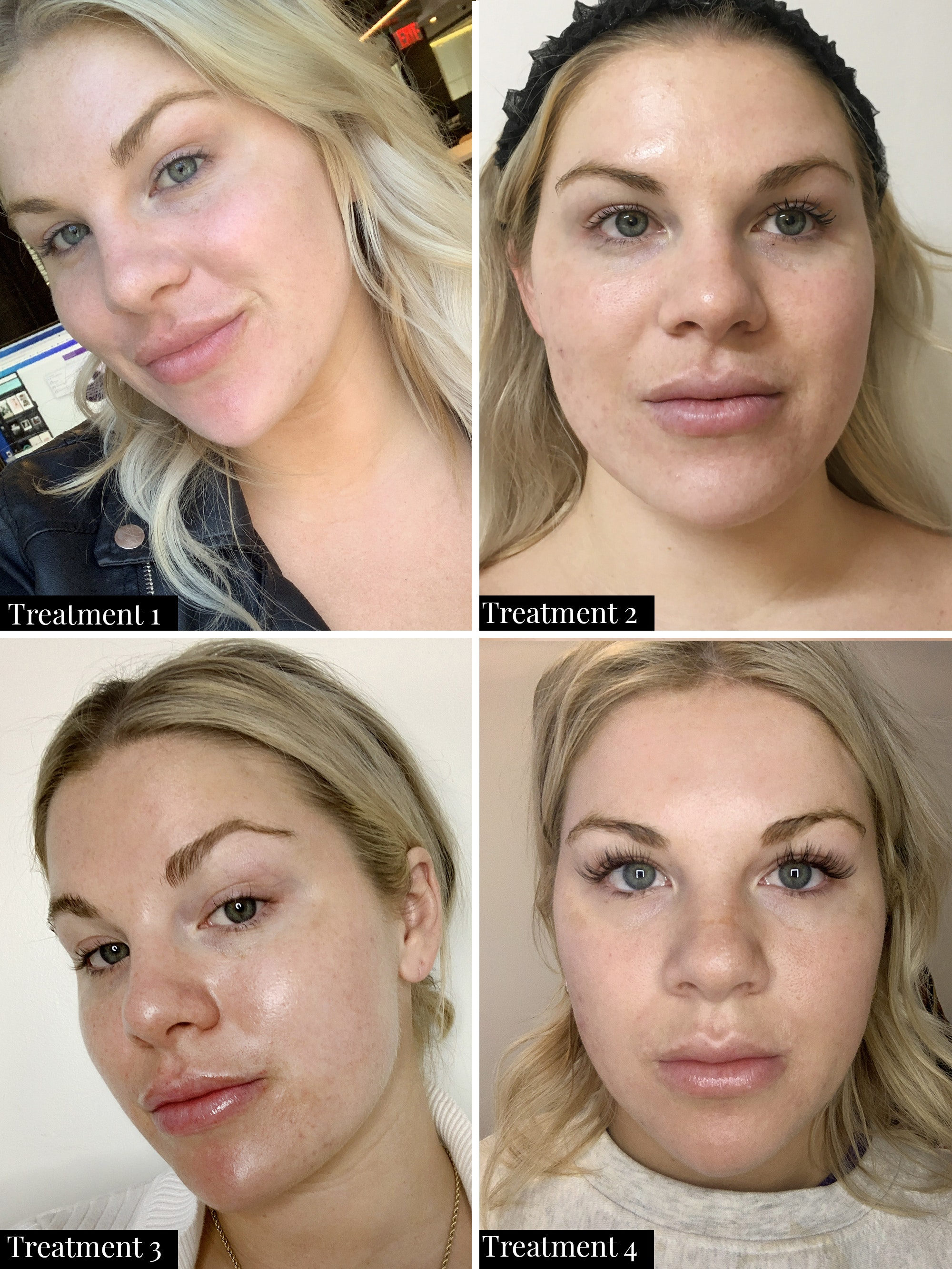 diamondglow facial treatment before and after results after 4 treatments with improved appearance of dark spots, hyperpigmentation, and fine lines and wrinkles.