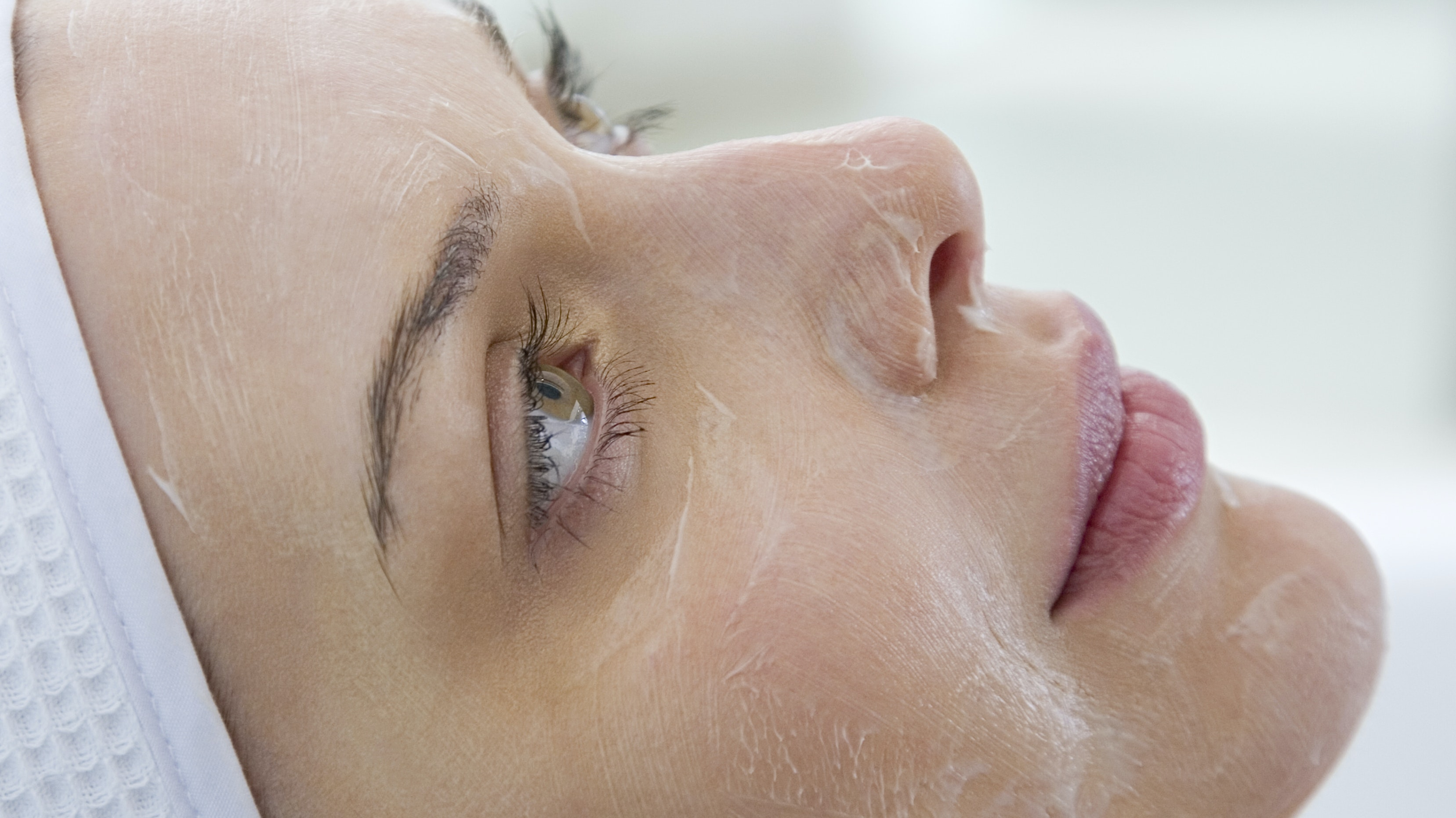 woman's face during a chemical peel