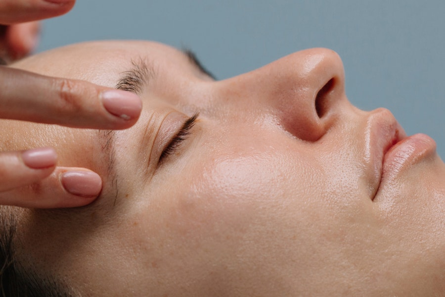 Radiofrequency, Chemical Peels, and More Ways to Upgrade Your Microneedling Treatment