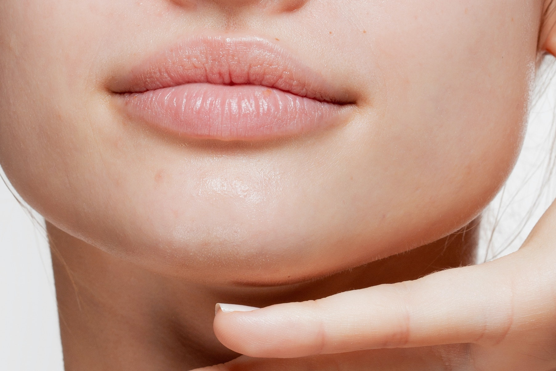 5 Dermatologist-Recommended Lasers That Can Help Smooth Out Old Acne Scars