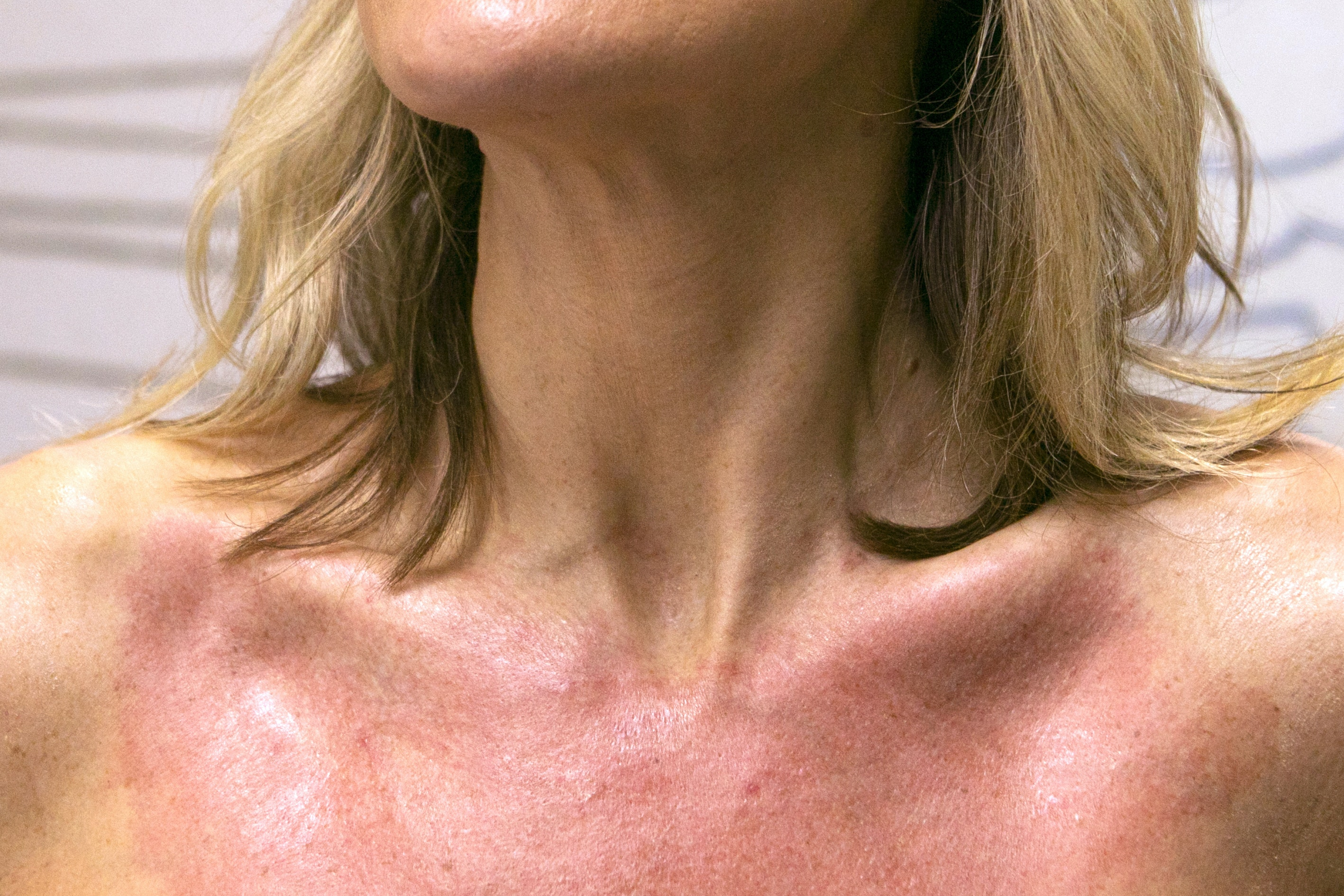 Watch As 1 Tanning Lover Gets Sun Damage on Her Décolletage Zapped Away