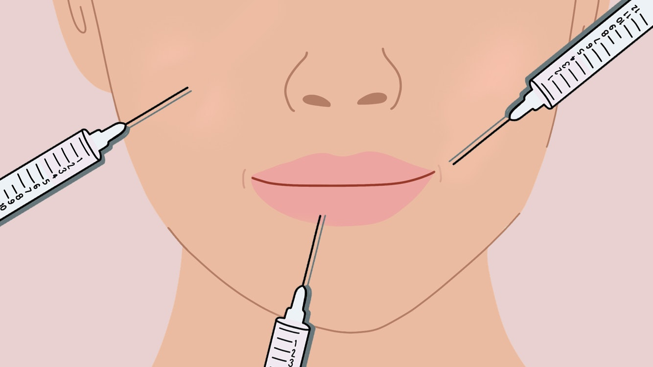 women share how much they spend on filler