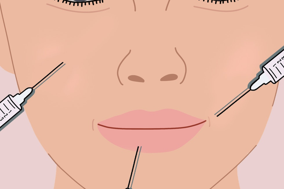 4 Women Across the Country Share How Much They Spend on Injectable Filler