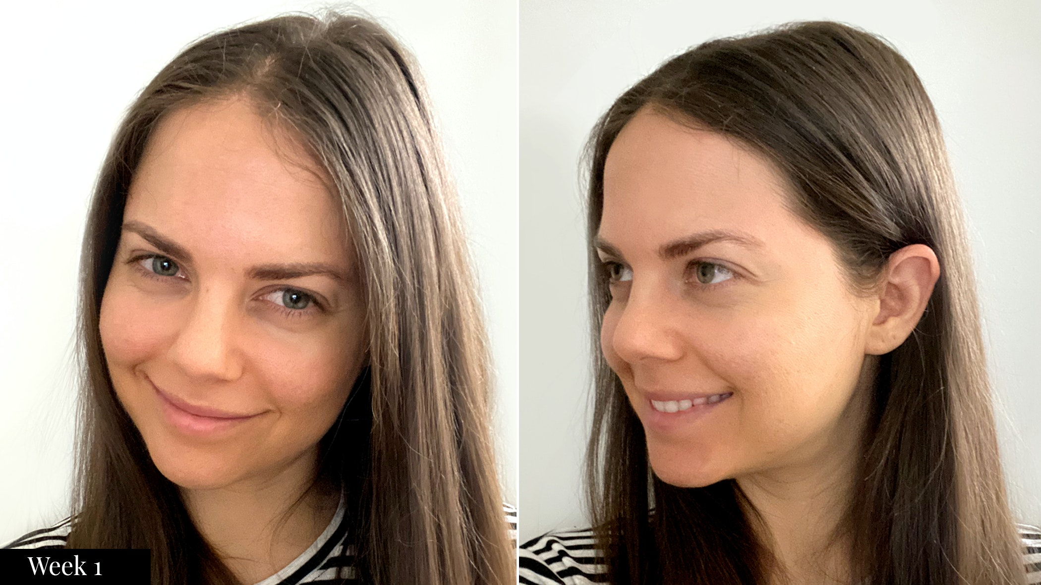 SkinMedica skincare results  after one week
