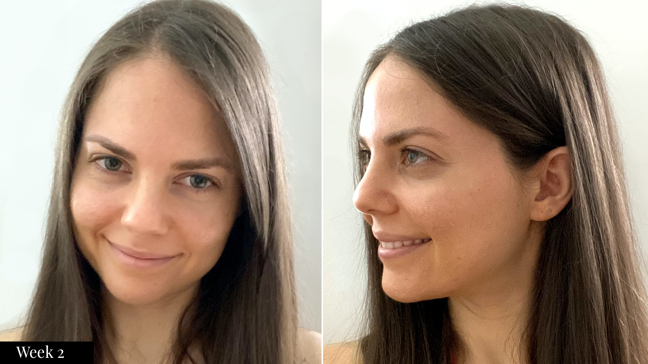 SkinMedica skincare results  after two weeks