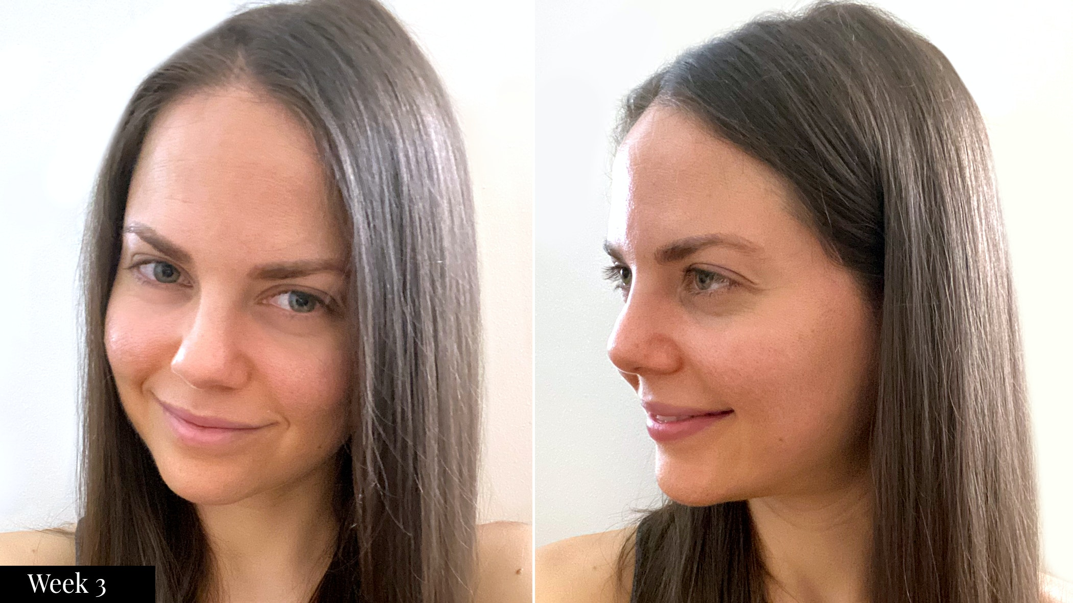 SkinMedica skincare results  after three weeks | Spotlyte