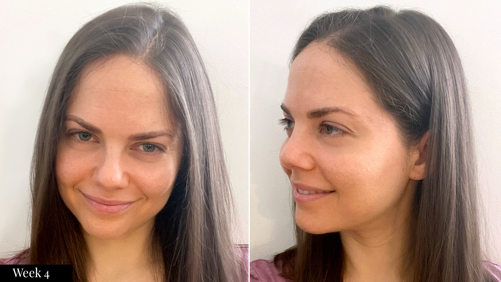 SkinMedica skincare results  after four weeks | Spotlyte