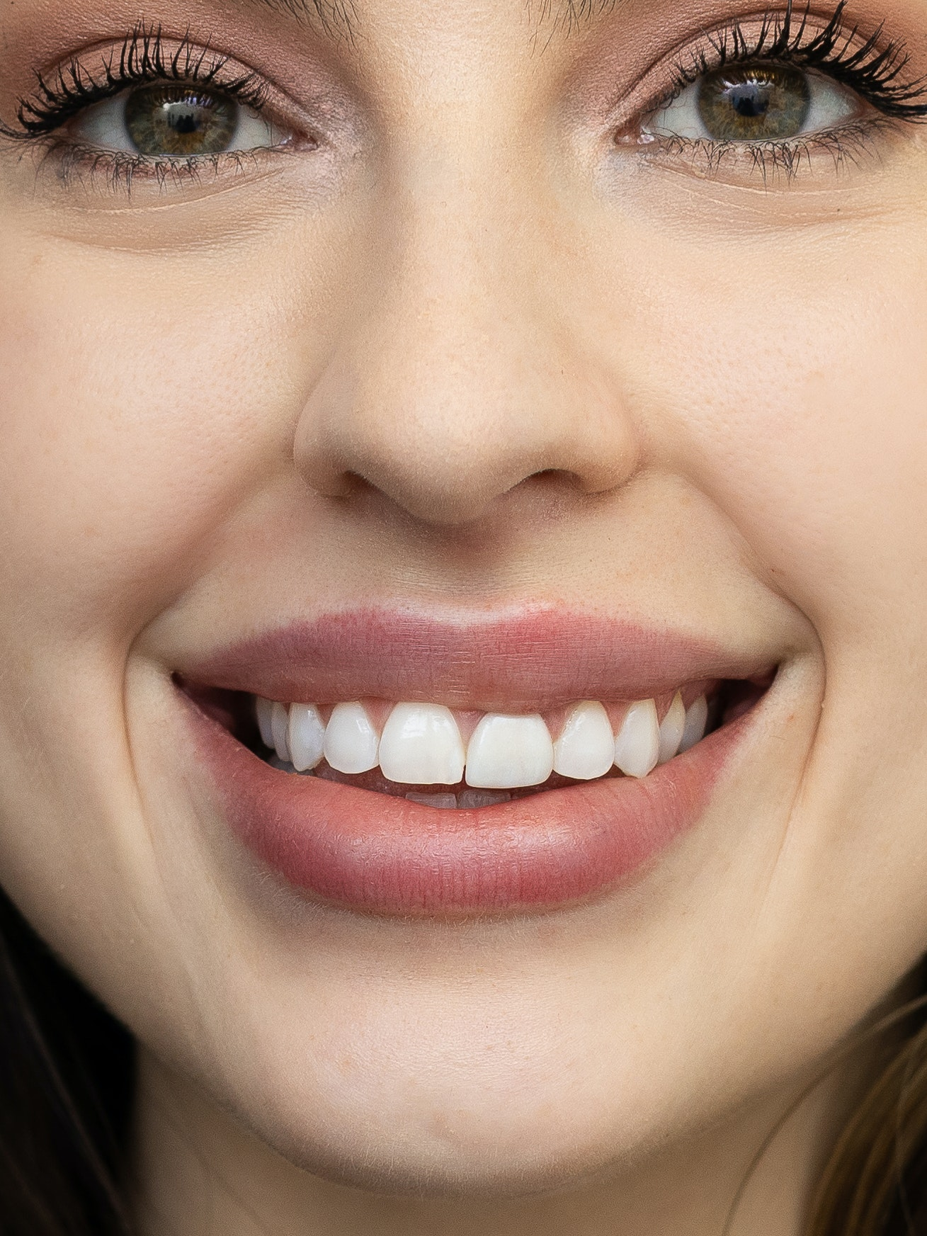 lip filler close up